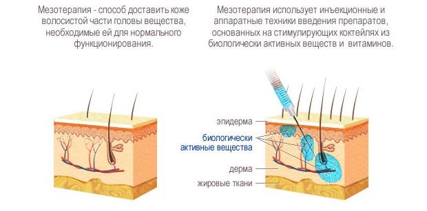 Фото мезотерапии волос