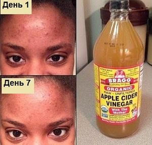 Применение яблочного уксуса для волос: фото до и после