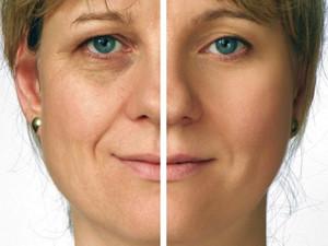 Фото результата на лице пациентки