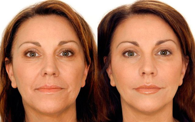 Фото: до и после кислородной мезотерапии лица