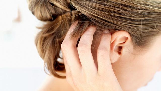 Выпадение волос, зуд и перхоть