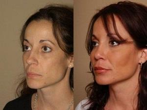 Фото лица: до и после липофилинга