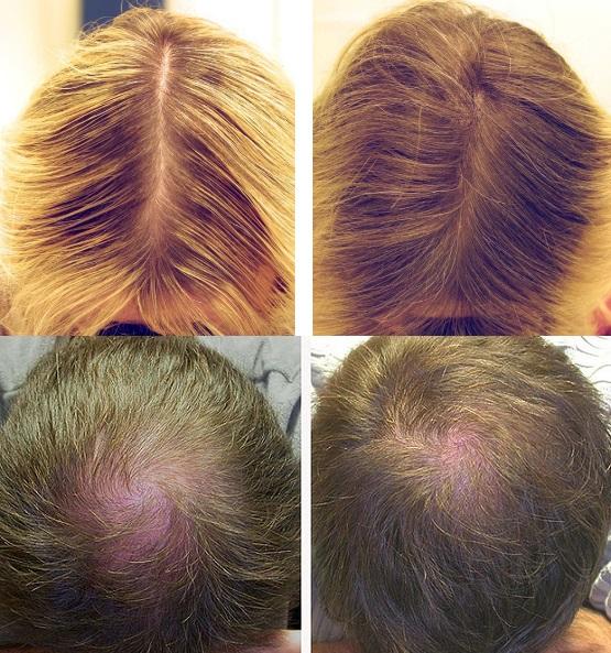 Мезотерапия волос: до и после