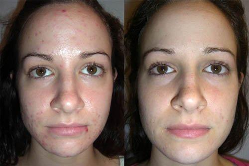Фото лица - до и после